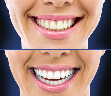 DentaBlack – Benefici – Effetti Collaterali – Controindicazioni – È sicuro?
