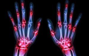 Osteoton - come si usa? – ingredienti – composizione - forum al femminile