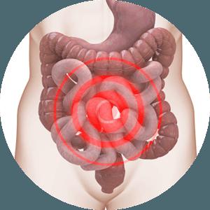 Novotoxinol, opinioni, recensioni, forum, commenti