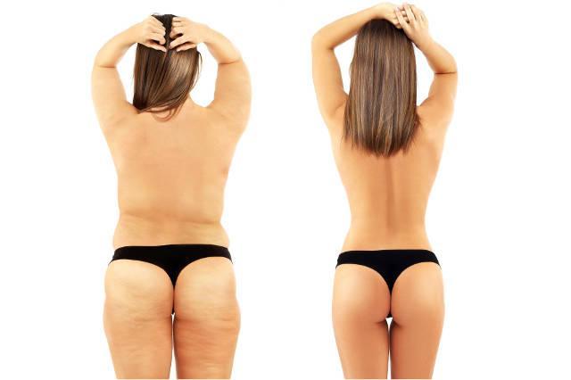 Perdita di peso efficace richiede l'esecuzione di alcune regole che non sono destinati a uprzykrzenia noi la vita. Applicazione scelti bene la dieta, l'attività fisica e l'esecuzione di studi, che possono rivelare che influenzano l'aumento di massa corporea, la malattia è un modo sicuro e sano la perdita di peso, che non finisce check-effetto yo-yo.Il calcolo del fabbisogno calorico giornaliero è uno degli elementi di una dieta sana. Senza la conoscenza di quante calorie abbiamo bisogno di consegnare al nostro corpo durante ogni giorno, non possiamo scegliere una dieta adatta per noi. Il contenuto calorico del corpo è la quantità di calorie di cui ha bisogno per il suo corretto funzionamento. Applicando una dieta è significativamente al di sotto delle nostre esigenze di calorie, ci esponiamo malessere, disturbi metabolici, e anche altri problemi di salute gravi carenze di cibo, tra cui.  La necessità del corpo di energia C'è molto da dire sul fabbisogno energetico del corpo, ma in realtà poche persone sanno di cosa si tratta. Consideriamo le calorie, ma non pensiamo al motivo per cui lo facciamo, danneggiando la nostra salute. Seguire una dieta richiede una conoscenza di base di come funziona il nostro corpo. Solo allora la perdita di peso si rivelerà efficace e non sarà influenzata dalla nostra salute.  Basta contare le calorie non è sufficiente per perdere peso. Prima di tutto, è necessario sapere quanta energia è necessaria per il nostro corpo, e dipende da molti fattori. Il nostro fabbisogno calorico giornaliero dipende dall'età, dal sesso, dal tipo di lavoro svolto e da quanto siamo fisicamente attivi. Quindi non è possibile utilizzare una dieta senza obbligo di determinare quante calorie dobbiamo portare nel nostro corpo in base alle sue esigenze individuali.  Come calcolare il fabbisogno calorico giornaliero? Attualmente, il calcolo del fabbisogno calorico giornaliero è banale. È sufficiente utilizzare sono disponibili Online calcolatrici speciale, che sulla 