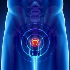 Che cosa è una biopsia della prostata liquida?